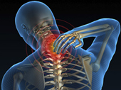 Radiating neck pain